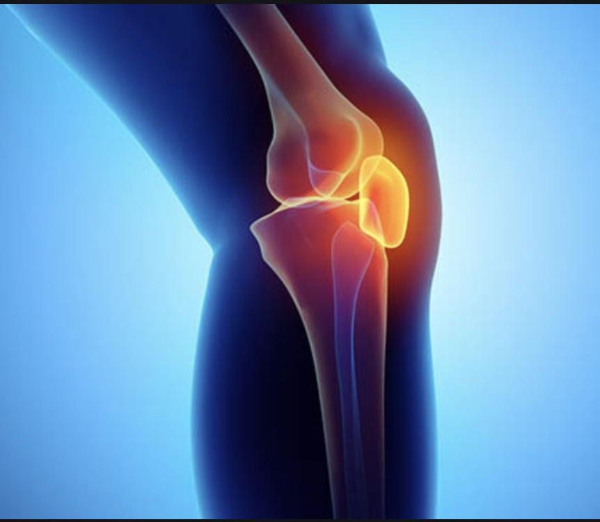 Osteoarthritis and Exercise Image