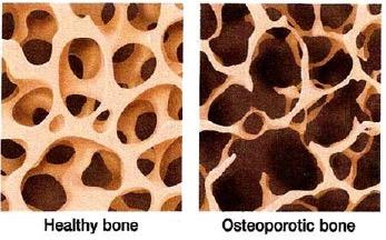 bone- showing osteoporosis