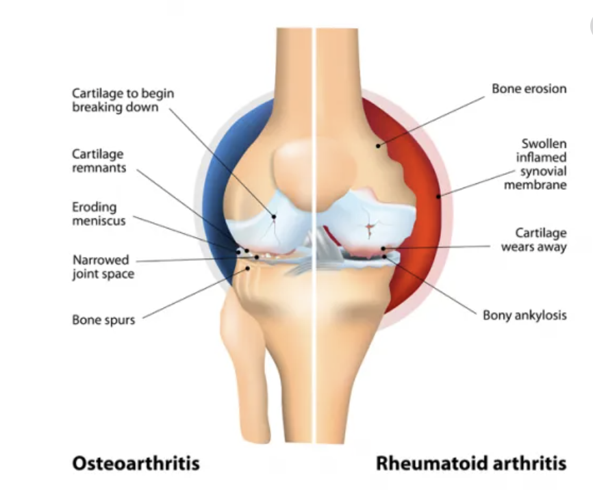 Arthritic changes at the knee